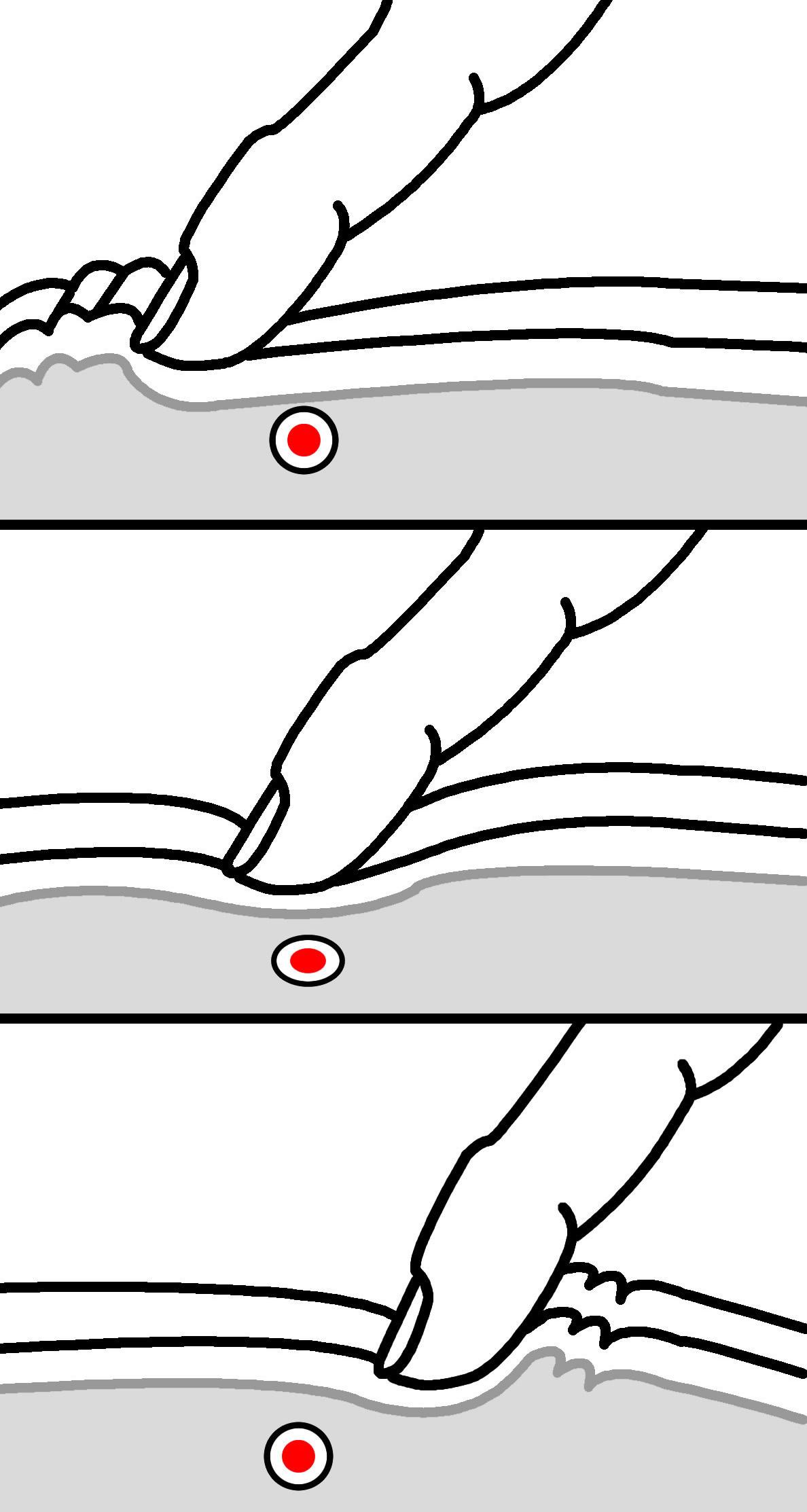Fase 1 palpazione e messa a nudo delle tette di mia moglie - 5 9